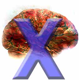 Fragile X syndrome,  or  Martin-Bell syndrome, is a syndrome of X-linked mental retardation that can occur with Autism, Asperger's and other autism spectrum disorders.